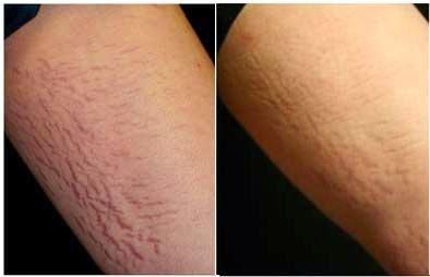 trị rạn da