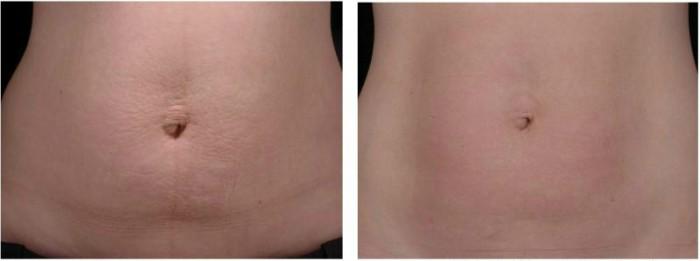 Hiệu quả sau 3 tháng điều trị rạn da bụng của khách hàng