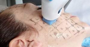 Trẻ hóa da bằng công nghệ Thermage hiệu quả kéo dài bao lâu?