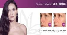 Demi Moore sử dụng Thermage để xóa nhăn mắt, môi và nâng cơ mặt