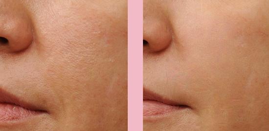 Kết quả khi áp dụng phương pháp chống lão hóa bằng laser theo lời khuyên chuyên gia