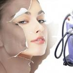Trẻ hóa da mặt bằng laser giải pháp số 1 giúp da trẻ được 10 năm