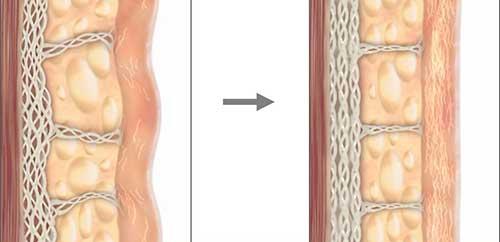 """Tế bào da bị hư tổn và lão hóa được """"thay mới"""" bằng những tế bào da căng tràn sức sống"""