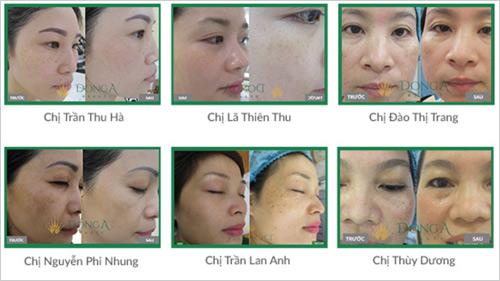 Kết quả trị nám tại TMV Đông Á