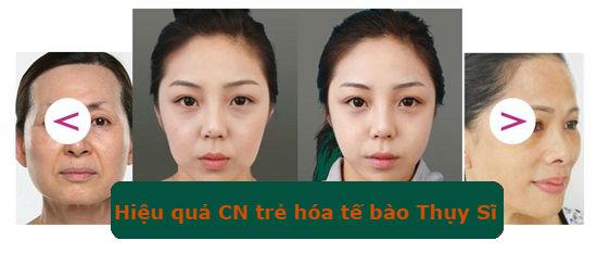 TMV Đông Á - độc quyền ứng dụng CN tế bào tại Việt Nam