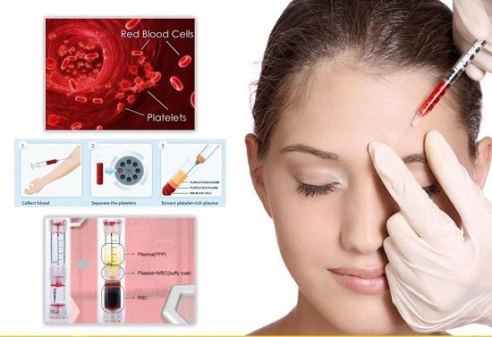 PRP có khả năng tái tạo và phục hồi da, an toàn tuyệt đối, không xâm lấn