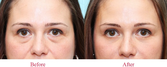 Bọng mỡ mắt là một trong những nguyên nhân khiến bạn già đi cũng sẽ được xóa bỏ