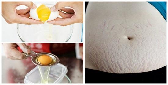 Mẹo trị rạn da bằng lòng trắng trứng gà
