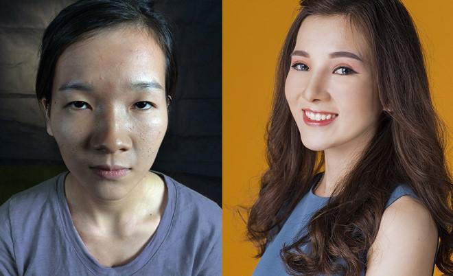 """Hình ảnh """"cô gái mắt lươn"""" thay đổi 180 độ gây ấn tượng mạnh sau phẫu thuật thẩm mỹ."""